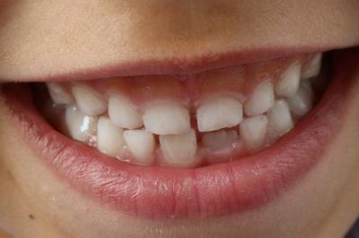dentiste rueil malmaison a votre service with dentiste rueil malmaison great implant dentaire. Black Bedroom Furniture Sets. Home Design Ideas